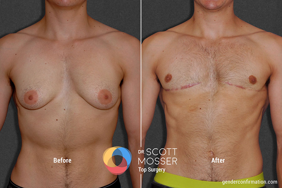 Ftm Chest Surgery - Scott Mosser Md-9514